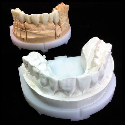 Bridge zircone Cerec