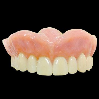 Complet résine maxillaire