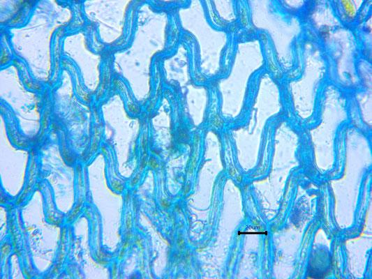 Bild 10 Zellen im Apexbereich