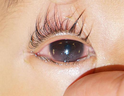 Da die unteren Wimpern auf der Hornhaut reiben, ist diese trüb.