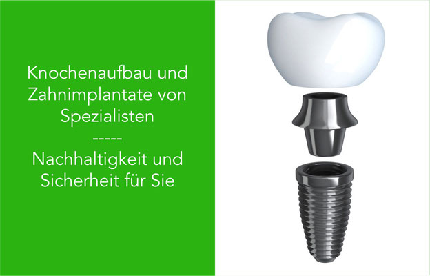 Zahnarzt Zahnimplantat mit Knochenaufbau in St. Leon-Rot