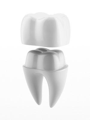 Hochwertiger Zahnersatz St. Leon