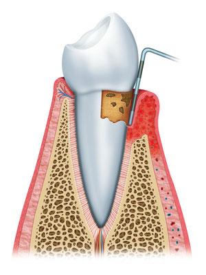 Parodontologie - Parodontitistherapie - Zahnfleischbehandlung