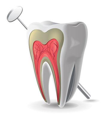 Endodontie Wurzelbehandlung St. Leon-Rot