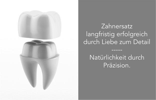 Zahnersatz, Zahnprothese, Zahnkrone, Zahnbrücke, Krone auf Implantat St. Leon-Rot