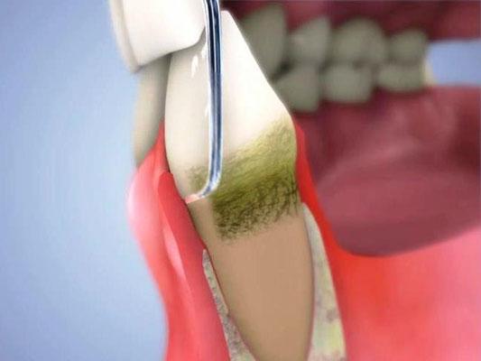 進行した歯周病を治すには、歯肉の中の歯石を取る必要があります。図は手で操作するハンドスケラーです。