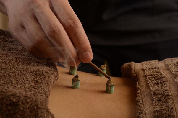 腰へのお灸施術