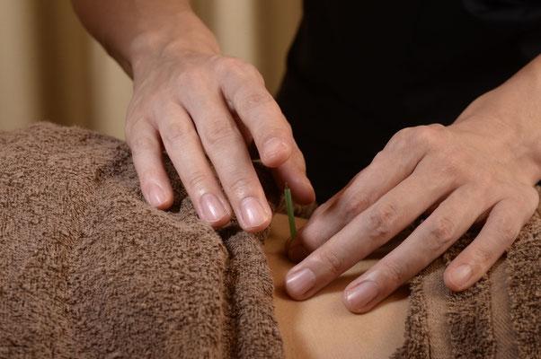 腰への鍼施術