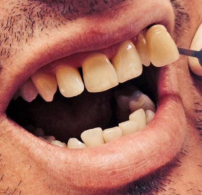 Vor dem Bleaching (Kosmetische Zahnaufhellung)