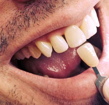 Nach dem Bleaching (Kosmetische Zahnaufhellung)