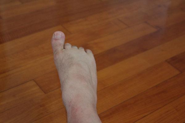 esercizio movimento dita dei piedi