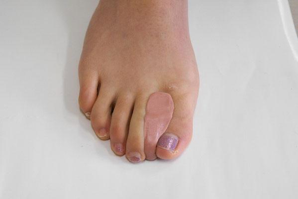 その場で成型するオーダー趾間装具「オーテーゼ」。外反母趾などの症状に。