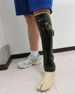 中学で運動部に所属、強度をもたせたカーボンのサイム義足(当社ロゴマーク入り)