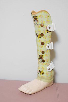 小児サイム義足(足部は大人用)