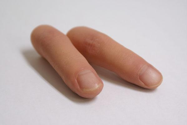 指キャップ式の手指義手。