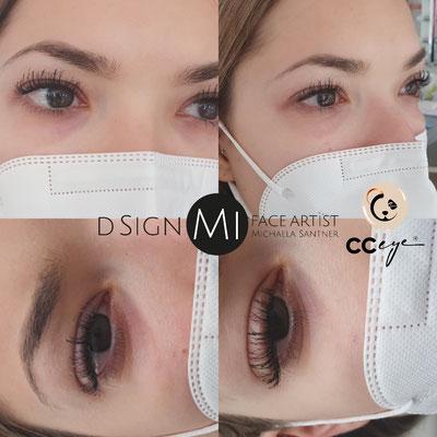 CC Eye - sichtbare Augenringaufhellung Augenschattenaufhellung nach nur einer Behandlung