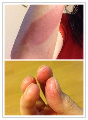 レジンアレルギーの症状。指先に痒みが走り、腫れ上がった後、皮がただれて剥けてきます。