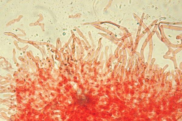 Russula melliolens Quél.  Cuticola: dermatocistidi larghi 5-10 µm