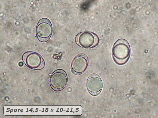 Helvella acetabulum (L.) Quél.Helvella acetabulum (L.) Quél. (NON COMMESTIBILE)  Foto Emilio Pini