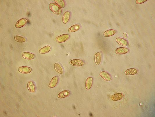 Hebeloma mesophaeum (Pers.) Quél. (NON COMMESTIBILE) Spore elissoidali, verrucose          9-11,5x5,5-7 nm  Microfoto Emilio Pini