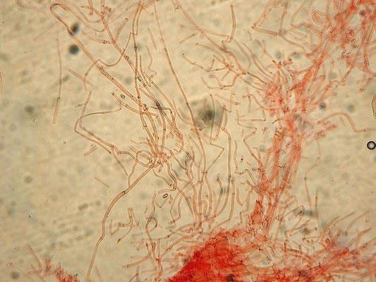 Hebeloma mesophaeum (Pers.) Quél. (NON COMMESTIBILE) residui di velo generale sul cappello >200x3-5 nm  Microfoto Emilio Pini