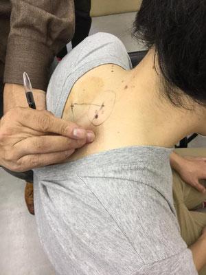 深谷灸法では重要な背部穴の取穴法の実技
