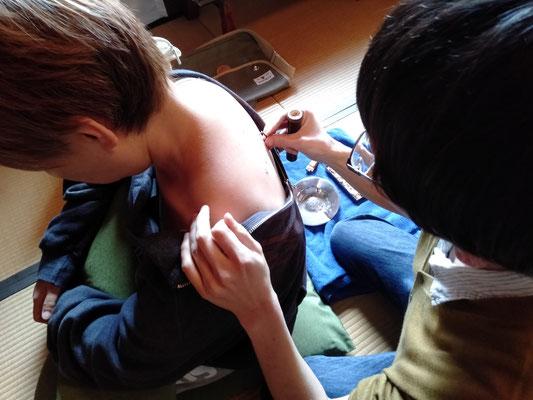 深谷灸法の実技
