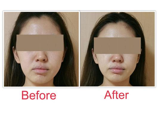 袋井小顔エステ 小顔矯正 顔の左右差 顔幅改善