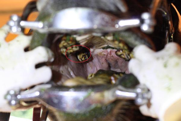 Fehlender oder stark unter Zahnfleischniveau liegender Zahn