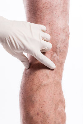 Sclerotherapy is not just injecting a vein, it helps to have a complete understanding of venous disease.