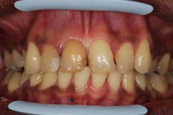 Un sourire avant la visite chez le dentiste