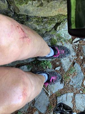 ...!!! Resultat: 2 zerbeulte Knie, 2 schmerzende Handgelenke