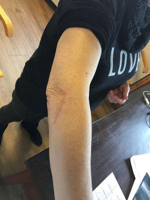 extension maximum avec la prothèse. Un peu d'enraidissement, comme souvent, et quel que soit le type de fracture. Dr Rémi, Croix du Sud, Toulouse
