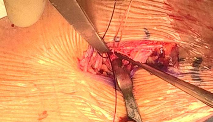 Au fond de l'incision, l'insertion du biceps est traversée de 2 tunnels, puis creusée en une logette où le tendon va être enfoui, attiré par les fils de suture qui passent dans les tunnels
