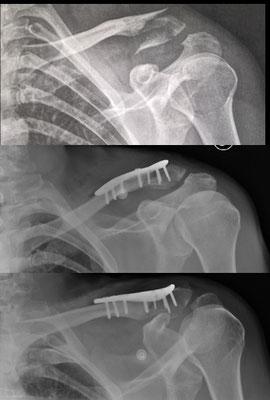 Fracture du quart externe de la clavicule : chirurgie du sport. Plaque vissée et repos un mois avec simple écharpe