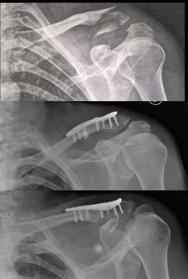 Fracture du quart externe de la clavicule : chirurgie du sport. Plaque vissée et repos un mois avec simple écharpe. Dr Rémi chirurgien orthopédiste Toulouse Croix du Sud