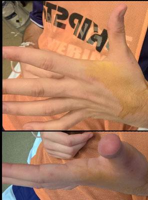 Après anesthésie locale, et la fameuse manoeuvre de Farabeuf (qui consiste à exagérer la déformation pour remboiter l'articulation), le pouce a une forme plus naturelle.