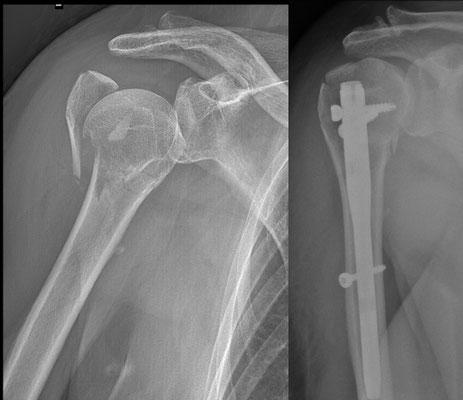 Fracture de l'épaule : chirurgie du sport. Enclouage vissé. L'épaule est fragile : 3 semaines d'écharpe et rééducation très douce en attendant un début de consolidation.
