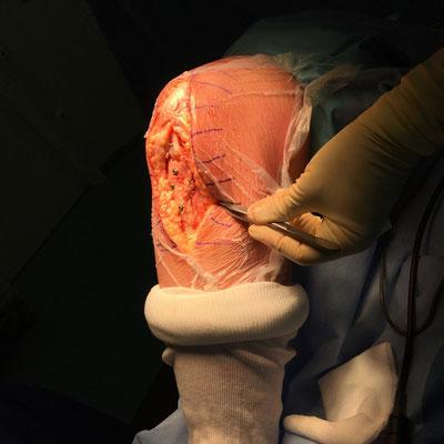Le genou plie avec une rotule bien centrée, bien attachée