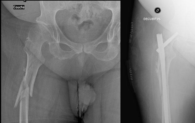 radio fracture de la diaphyse du fémur sur dysplasie, chirurgie du sport : enclouage de tout le fémur par un tuteur solide en percutané. Appui immédiat.