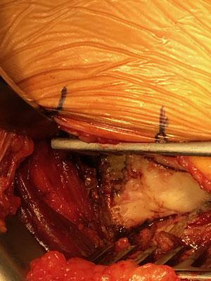 La capsule écartée, voici le col du fémur, dont la tête est à droite.  Le vaste externe (autre partie du quadriceps) est en bas à gauche, le fessier en bas à droite..Dr Rémi, Toulouse