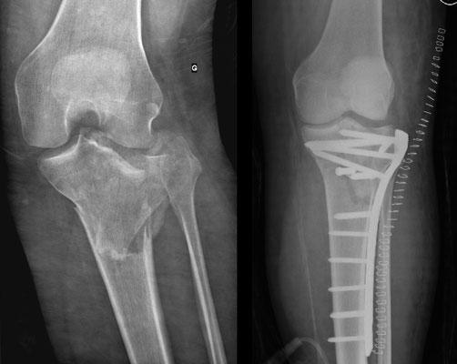 radio fracture enfoncement large du plateau tibial externe Schatzker 4, chirurgie du sport : plaque d'ostéosynthèse. Appui contact 2 mois et demi et mobilisation immédiate.