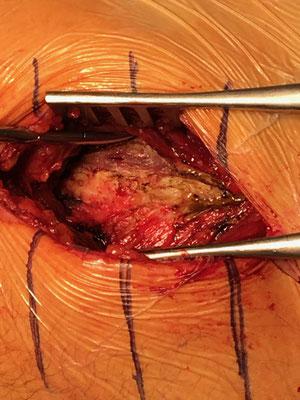 En haut, l'iliopsoas, au milieu, la capsule articulaire, en bas, un peu du fessier. Dr Rémi, Toulouse.