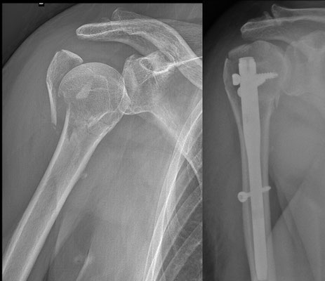 Fractura espalda, cirugia deportiva : clavos intramedulares. 3 semanas el brazo en cabestrillo y rehabilitacion dulce.