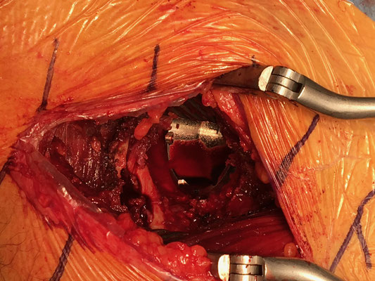 Le cotyle métallique est impacté : il se bloque dans le bassin à coups de marteau. Dr Rémi, Toulouse.