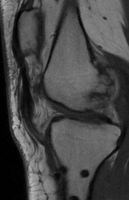 sur l'IRM, on voit le tendon tout fin et désorienté en distal, se finir au milieu des parties molles, et non sur le tibia