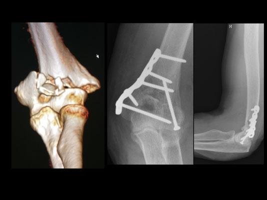 Fracture codo, cirugia deportiva : placa y tornillos. Rehabilitacion inmediatamente, simple cabestrillo.