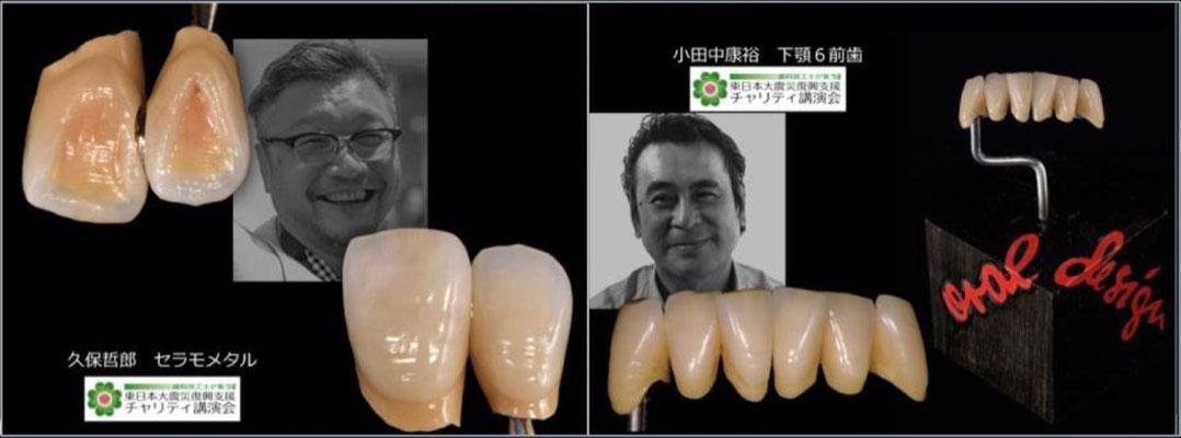 "Tetsuro Kubo ""Maxillary Central Incisors / Lateral Incisors Metal Ceramics Sample"" / Yasuhiro Odanaka ""Metal Ceramic Bridge with 6 Mandibular Anterior Teeth"""