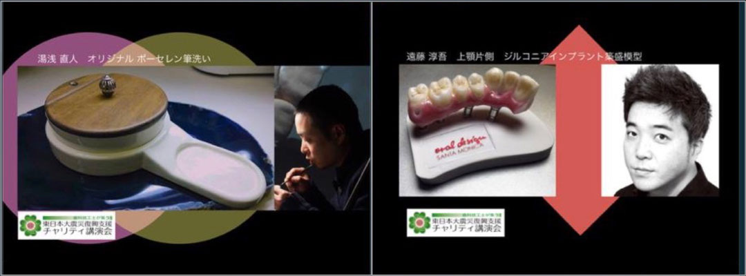 """Naoto Yuasa """"Original Porcelain Brush Washer Metal Ceramics Sample"""" / Jungo Endo """"Implant superstructure with 7 teeth gum on the upper right"""""""