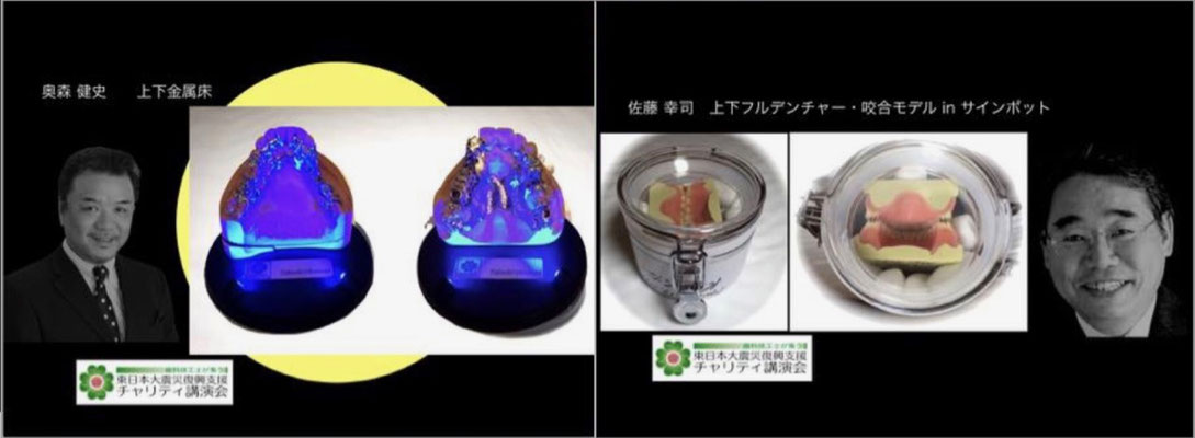 """Takeshi Okumori """"Upper and lower metal floor samples with illuminated exhibition stands"""" / Koji Sato """"Upper and lower full denture occlusion model with autographed pot"""""""